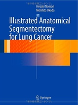 Illustrated Anatomical Segmentectomy for Lung Cancer, 1st Edition